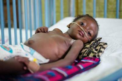 Femi*, 2, was admitted to hospital with pneumonia and tuberculosis in the Democratic Republic of Congo (DRC).